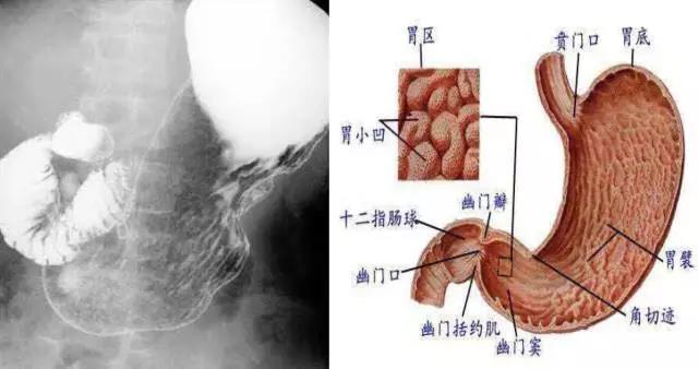 无激惹,十二指肠环不大,无压迹,蠕动如常,造影剂通过顺利,回盲部结构