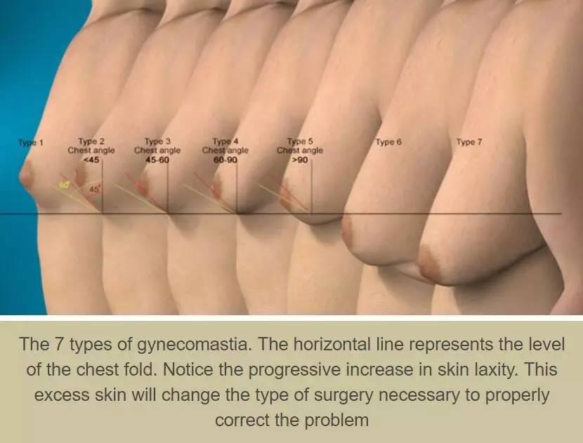男人右边是肝还是胃-胸大的男人是怎样的一种体验  男性乳房发育有哪些临床表现?   患者出图片
