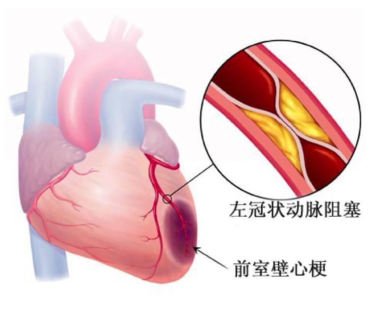 血管闭塞什么症状