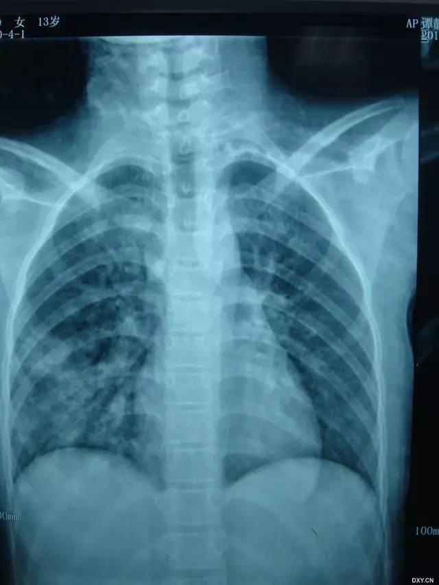 成人自拍偷拍影�_多图解析:成人特发性肺含铁血黄素沉着症的影像学表现