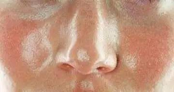 我要说护肤品根本不能缩小毛孔,你信吗?