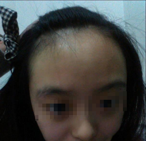 头皮出油严重脱发,头发细软又稀少,发际线高前额光秃……这样做可以得图片