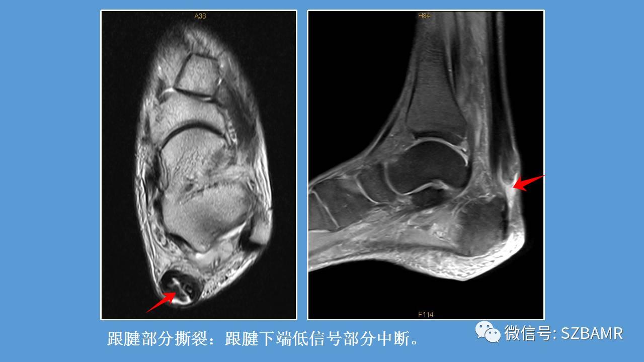 经皮带线铆钉治疗急性闭合性跟腱断裂23例   骨科在线
