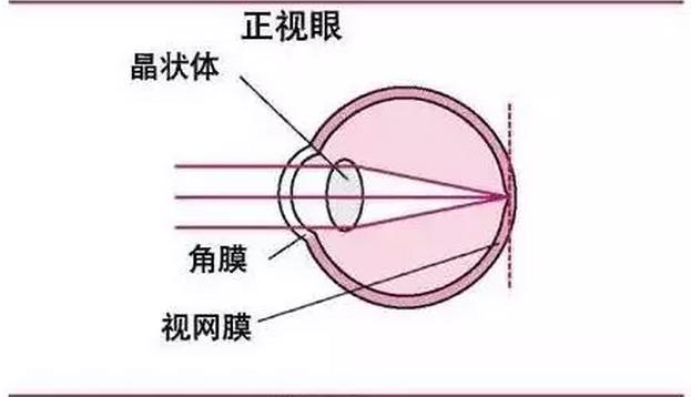 眼镜什么原理_眼镜卡通图片