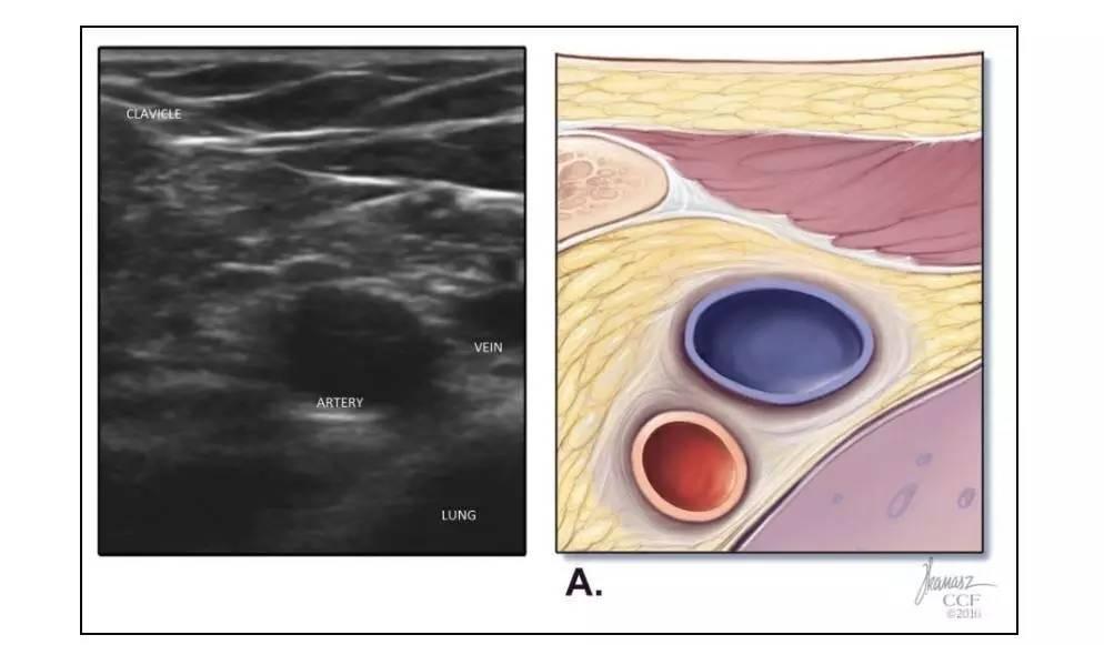 超声引导下经腋静脉或锁骨下静脉穿刺置管术更新:充分