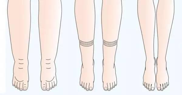 跑步v水肿?水肿小腿?判断每天减脂每周做几次有氧图片