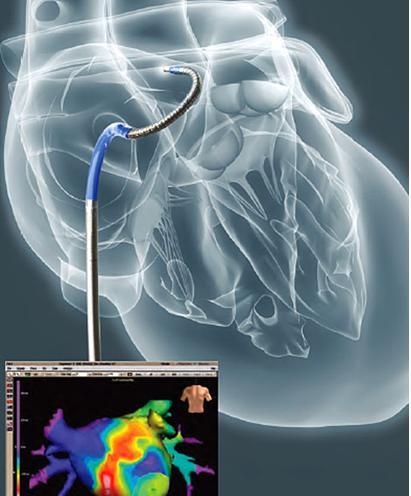 通常,房颤射频消融术前停用抗心律失常药物,但不要自行停用,应向主治