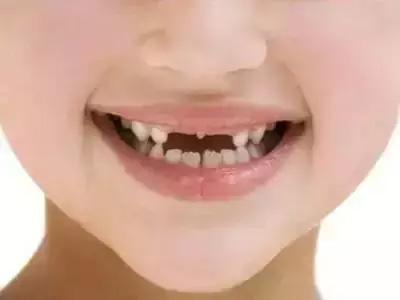 杭州牙齿矫正哪里好 杭州儿童牙齿矫正医生