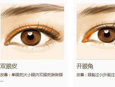 日本开眼角双眼皮手术