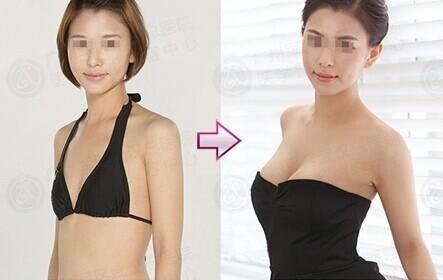 你知道假体隆胸的极限吗?