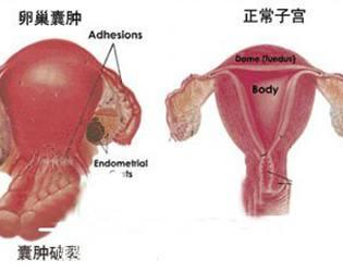怀孕卵巢扭转