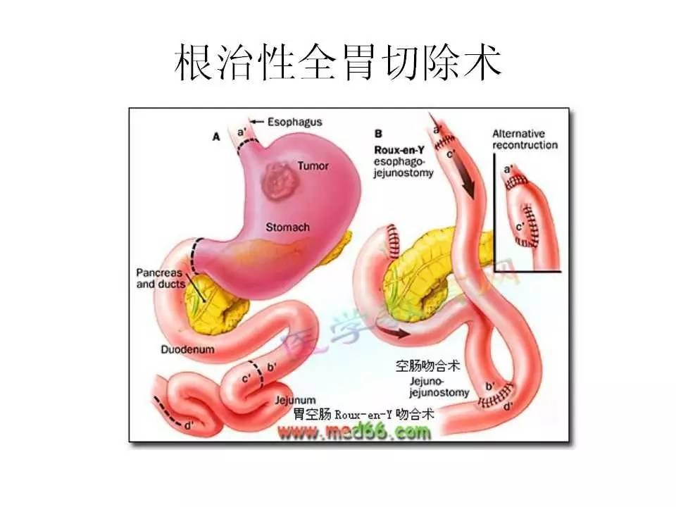 胃癌的护理查房