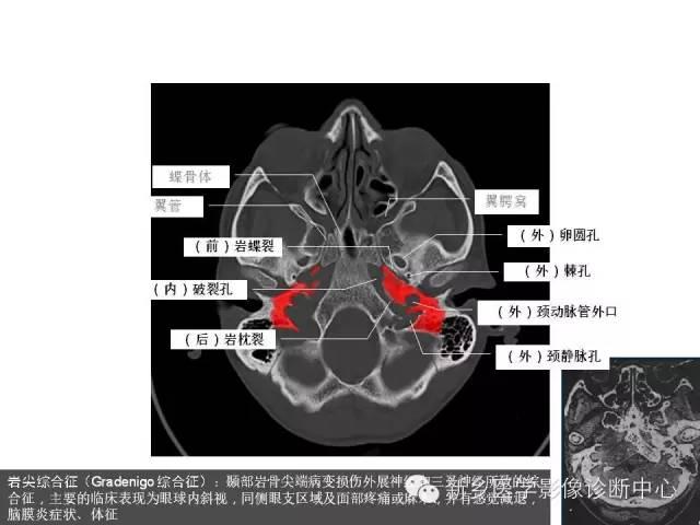 鼻咽部的详细解剖(含各个孔道)