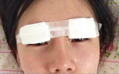 切开双眼皮恢复后,跟以前的气质完全不同了