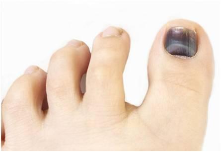 伤痛 | 黑趾甲& 脚泡怎么处理?
