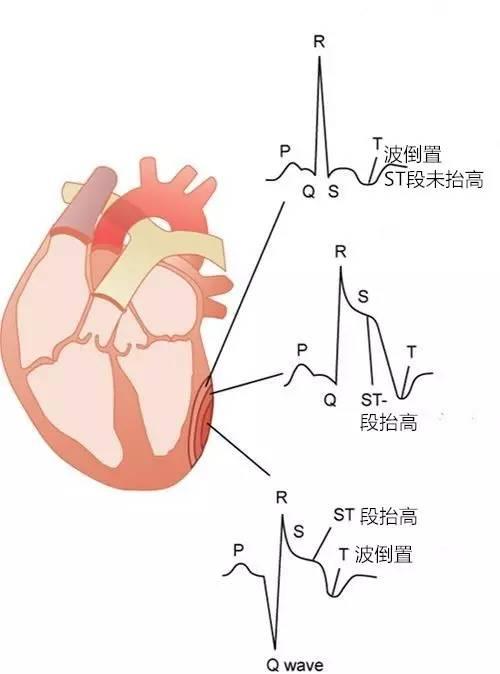 生动讲述 急性心肌梗死的来龙去脉