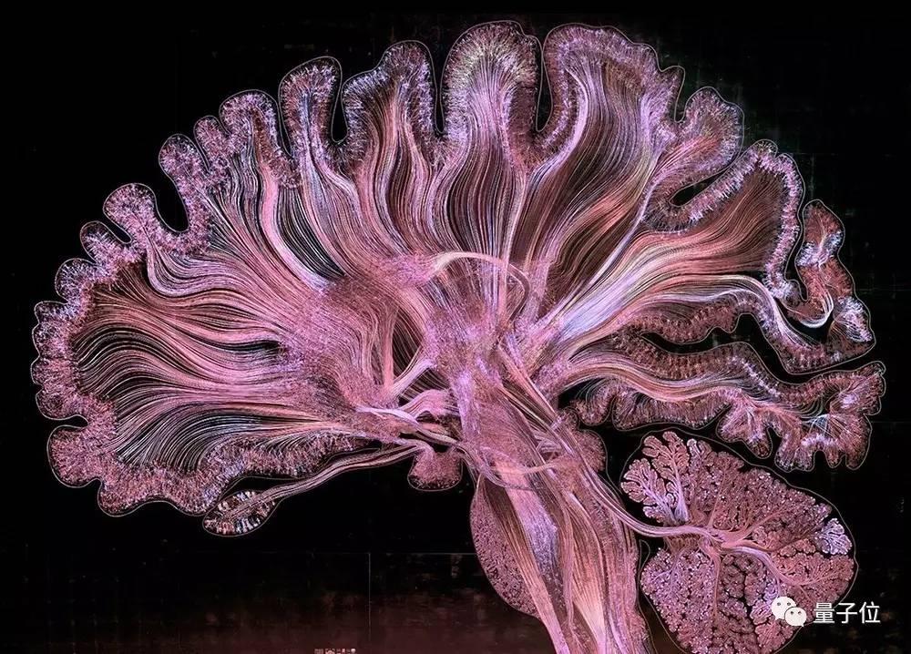 深度解密马斯克NeuraLink:释放人脑全部潜能,不只做神经织网