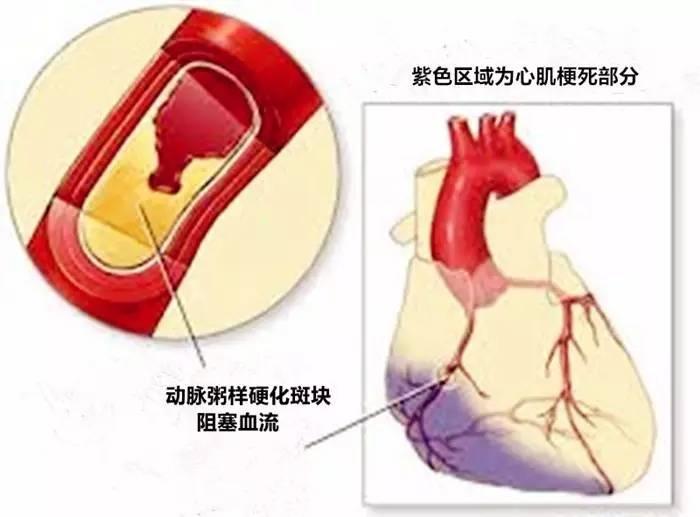 心肌酶的症状