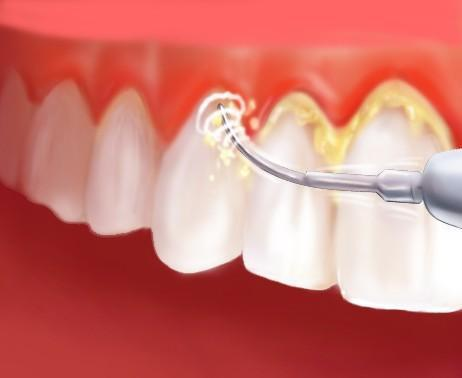 牙龈出血怎么办