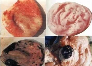 结肠解剖结构图谱