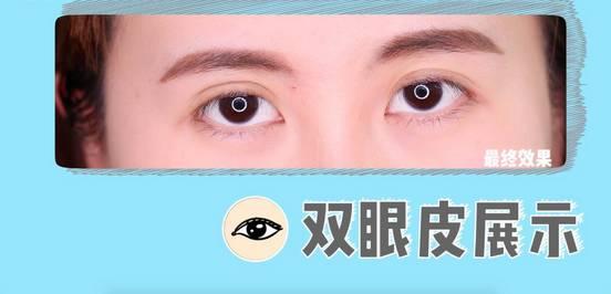 李小璐眼皮宽窄切换自如,秦海璐啥时候割了她价值百万的单眼皮? 美容护肤 图39