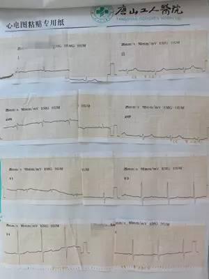 享|纪征:IVUS指导旋磨术攻克偏瘫患者左冠脉严
