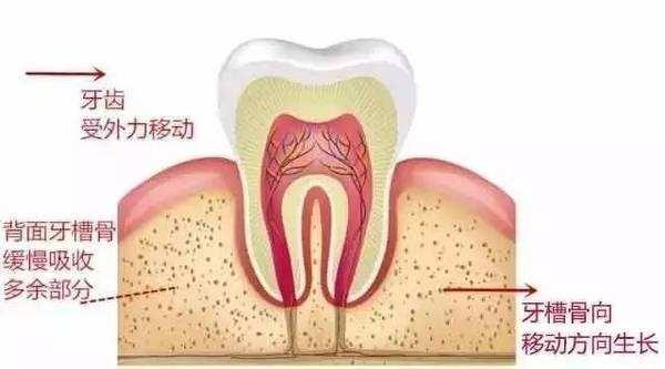 牙齿矫正对外貌有多大影响 整牙能改变脸型吗