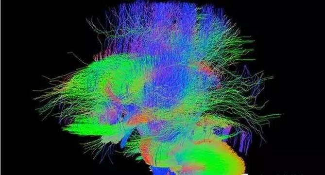 """【重磅】科学家将公布人类""""十月怀胎""""的脑成像图"""