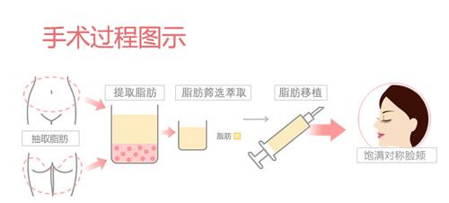 部脂肪_额部脂肪颗粒填充移植不需动刀手术,因为该手术是采用注射的方法,所以