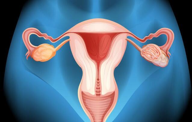 子宫内膜异位症预防饮食解析