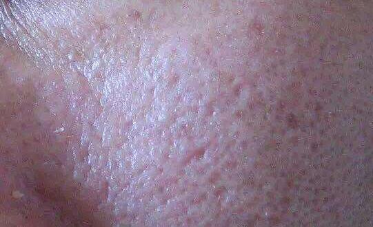 熬夜上班族:毛孔粗大怎么办?怎么解决?皮肤管理