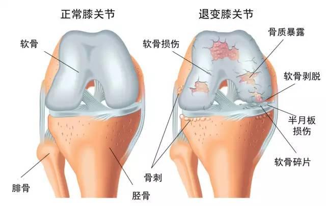 嘎嘣脆,膝盖碎?!如果膝盖有这种感觉,那么你的问题可能很严重...