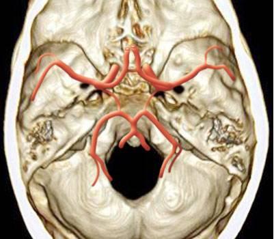 大脑Willis环的解剖及变异