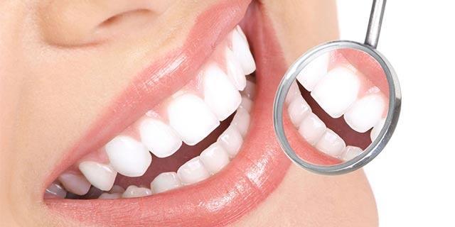 """牙齿美白,你适合做么?"""""""