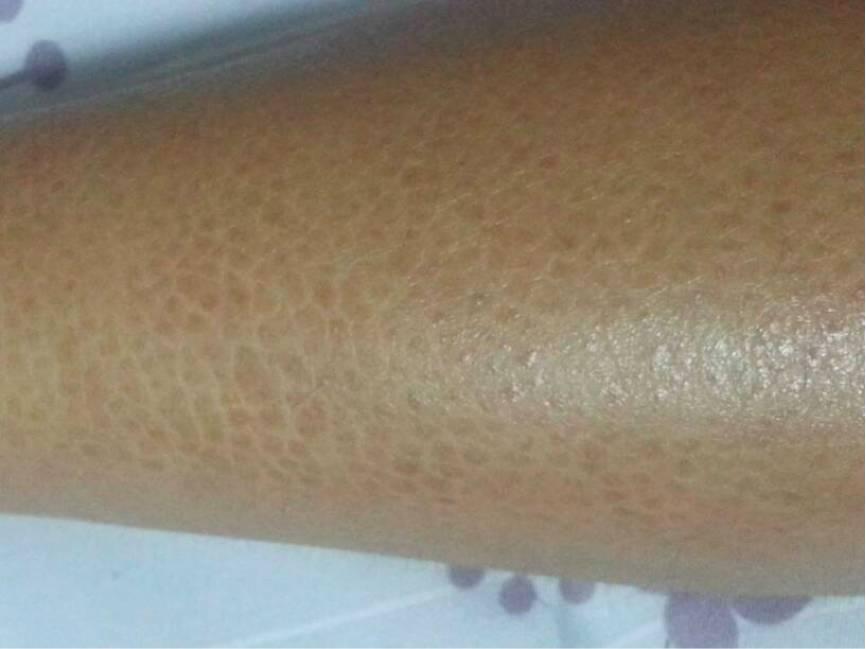鱼鳞皮肤病囹�a�`�yx~x�_像鱼鳞或者蛇皮一样的深色菱形或多边形鳞屑,紧贴在皮肤上,部分边缘可