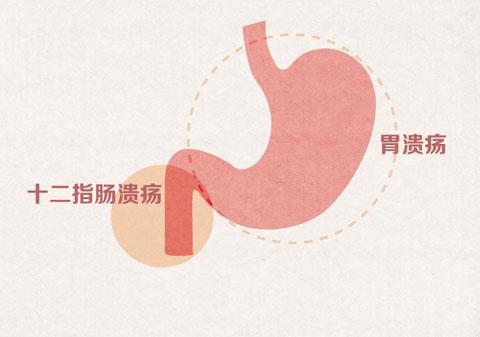 石斛能搞定的4大肠道疾病排行榜