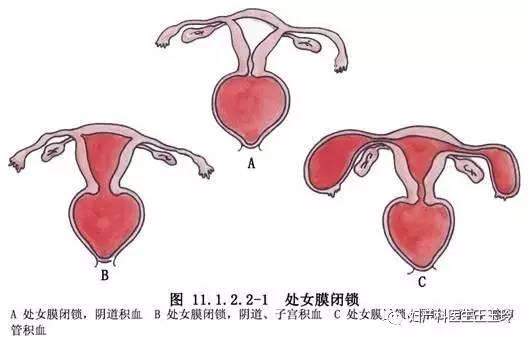 原发性闭经是什么鬼? 女孩子多少岁来例假才算正常?