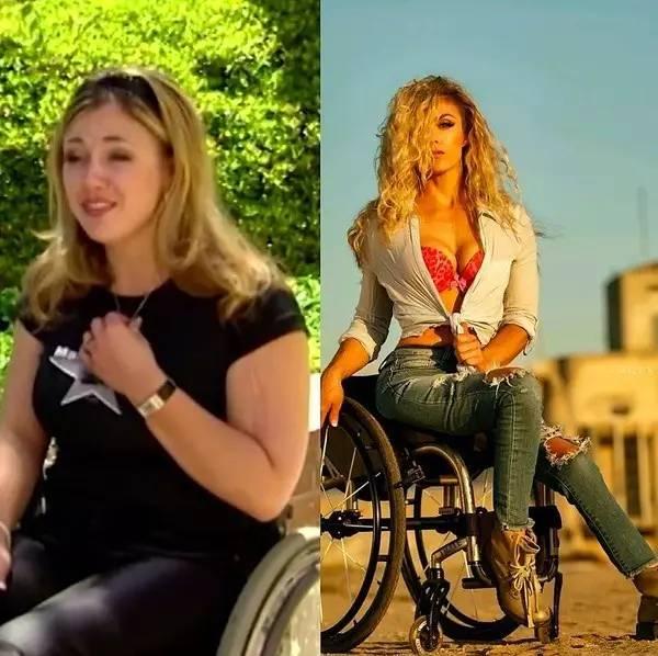她车祸后半身瘫痪、暴饮暴食,竟然成为最性感女神 ……