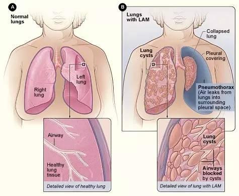 肺部在哪个位置-6 1 世界淋巴管肌瘤病关爱日,关注女性罕见病 罕见病