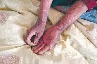 1996年,69岁的高耀洁遇到了一位改变她人生轨迹的女病人.