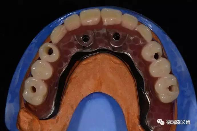 3D打印技术在口腔种植导板制作中的应用