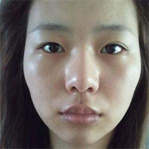 眼皮修复 棱角下巴矫正和前颧骨磨骨整形手术