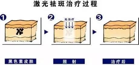 祛斑原理是什么_祛斑是什么样子的图片