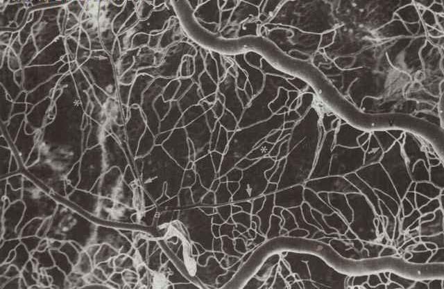 鳞状细胞癌手绘图片