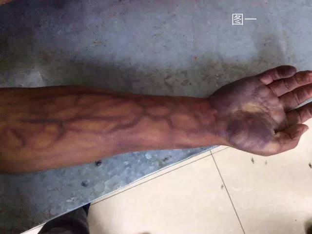 上臂有明显腐败静脉网(图一),下肢量少较轻.-解剖尸体后,终于