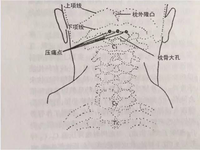 、心电图、胸片正常.颈椎X线片 头颅CT无异常.脑电图检查部分图片