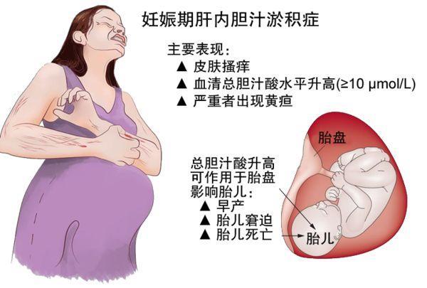 怀孕全身痒得受不了 怀孕痒