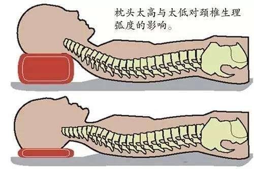 正确的睡姿,颈椎病必读