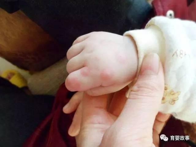 孩子患皮肤划痕症怎么办