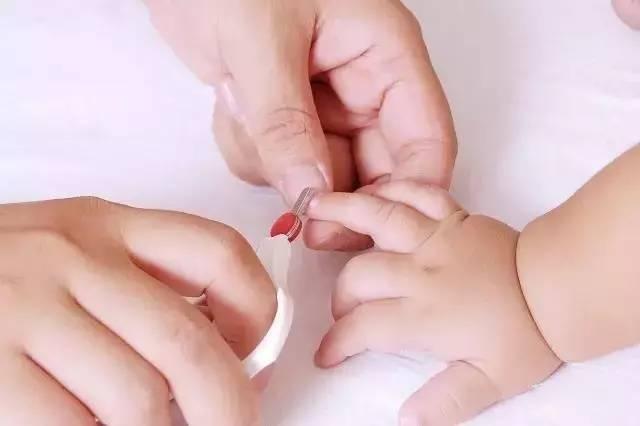 指甲护理不当造成宝宝小指坏死 切除,金牌月嫂分享8条指甲护理细节